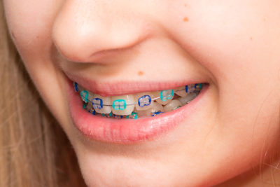 kids-orthodontist-garden-grove-best-orthodontist-orange-county
