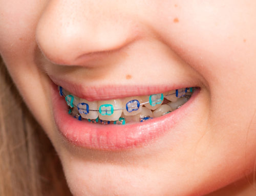 The Importance of Orthodontics for Children