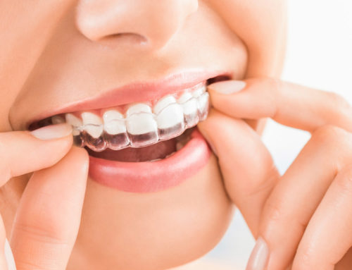 What Parents Should Know About Invisalign for Teens