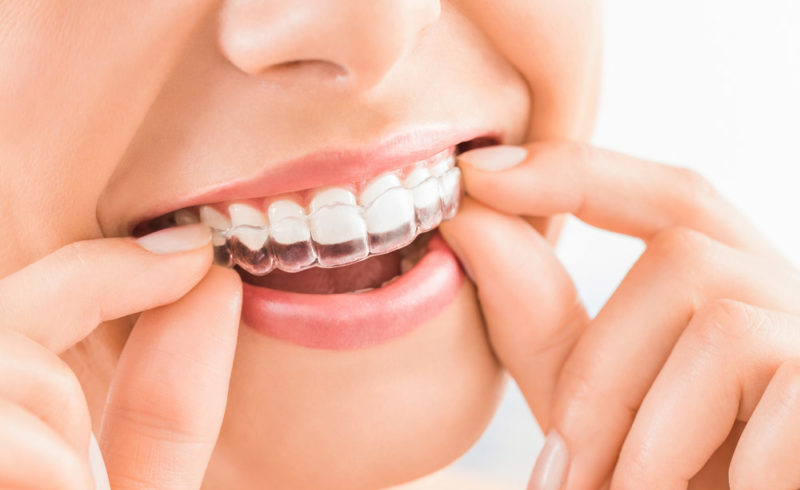 best-orthodontist-garden-grove-orange-county-ca