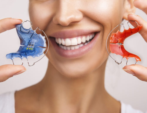 Importance of Wearing Retainers