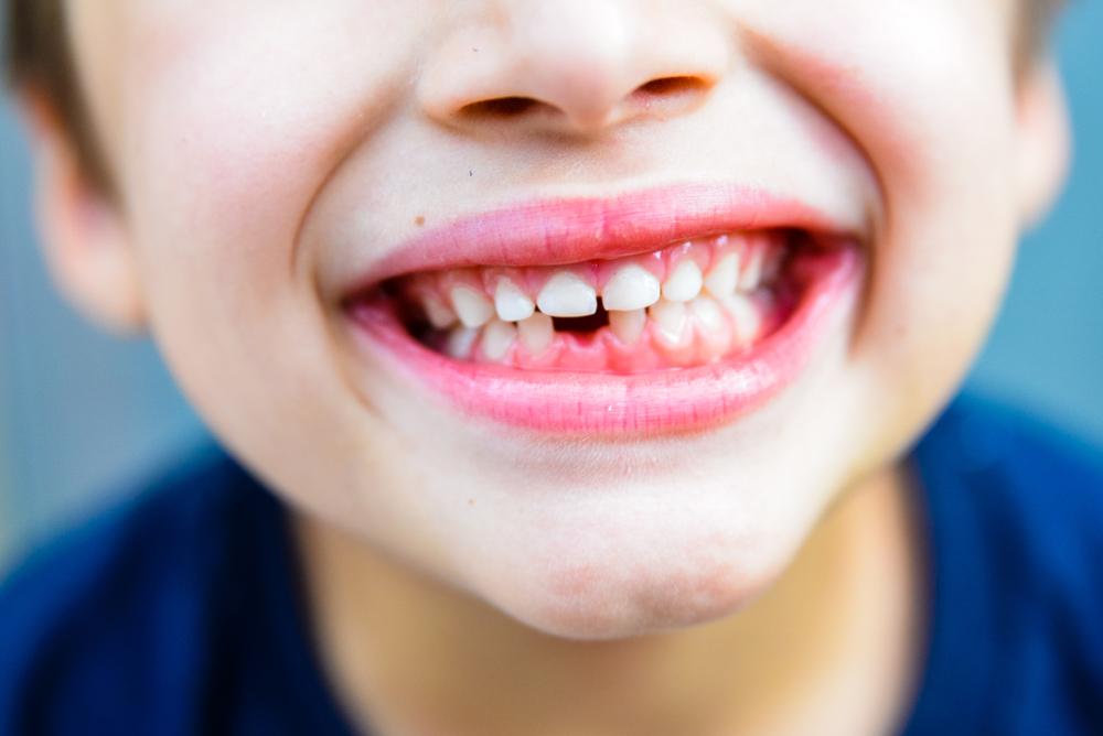 family-kids-orthodontist-garden-grove-orange-county