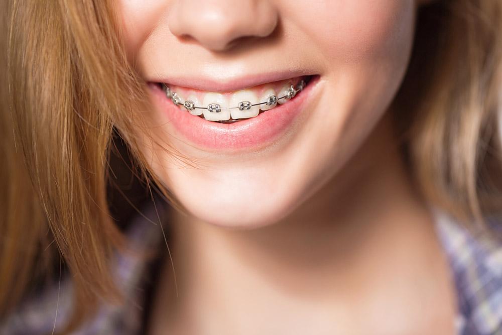 best-kids-orthodontist-garden-grove-orange-county-ca-2